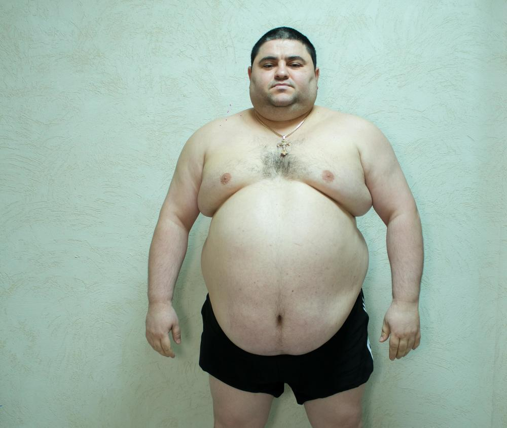 160-килограммовый продавец обуви Петрос Саркисян - первый участник проекта «Сбросить лишнее»