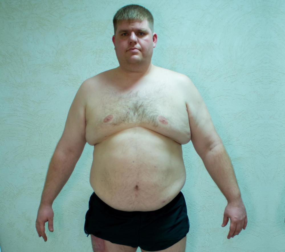 145 килограммов весит автослесарь Александр Иванов – второй участник реалити-шоу «Сбросить лишнее»