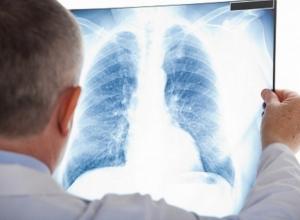В ушедшем году количество больных туберкулезом в Волгодонске увеличилось