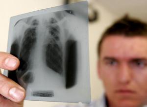 Два ребенка заразились туберкулезом с начала года в Волгодонске