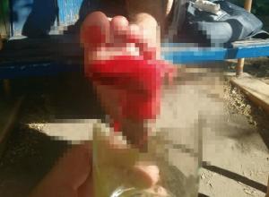 Отдых на базе «Волна» закончился для волгодонца торчащим в ноге стаканом