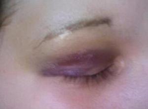 В Волгодонске избили девушку, которая хотела спеть песню в караоке