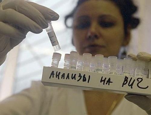 Восемь процентов волгодонцев опасаются заразиться ВИЧ на работе