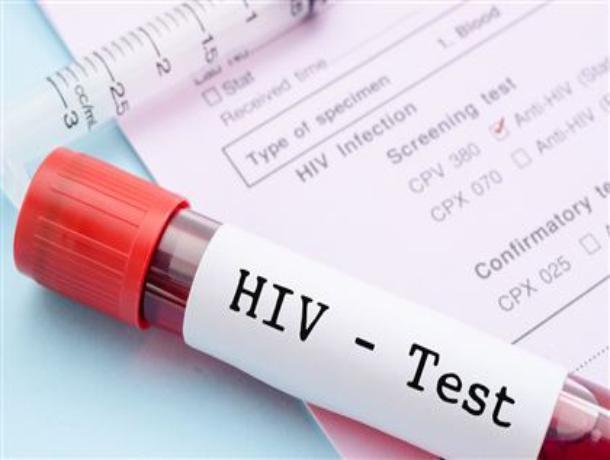 34 новых случая ВИЧ-инфекции выявлено у жителей Волгодонска