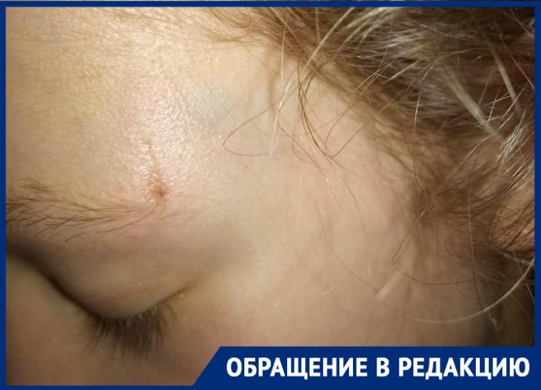13-летняя волгодончанка ушибла голову в маршрутке при резком торможении